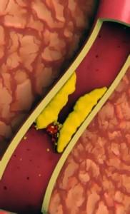 Диета гипохолестириновая : худеем и снижаем уровень холестерина
